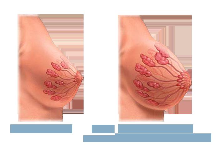 Увеличение бюста пермь