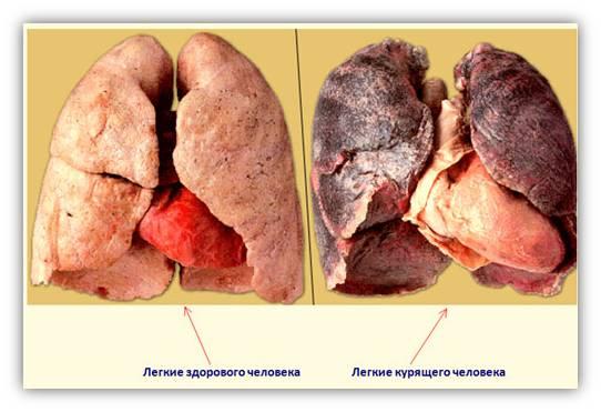 фото к чему приводит курение